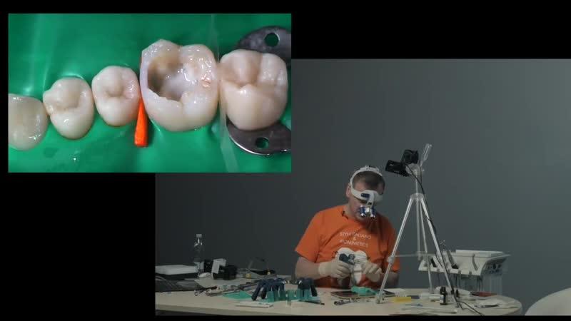 Реконструкция разрушенных боковых зубов