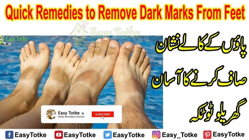 Quick Remedies to Remove Dark Marks From Feet Paon ke Kale Nishan Saaf Karne Ka Totka Urdu Hindi