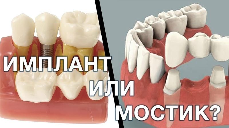 Имплант или зубной мостик. Что лучше выбрать Имплантация зубов. Мост зубной.