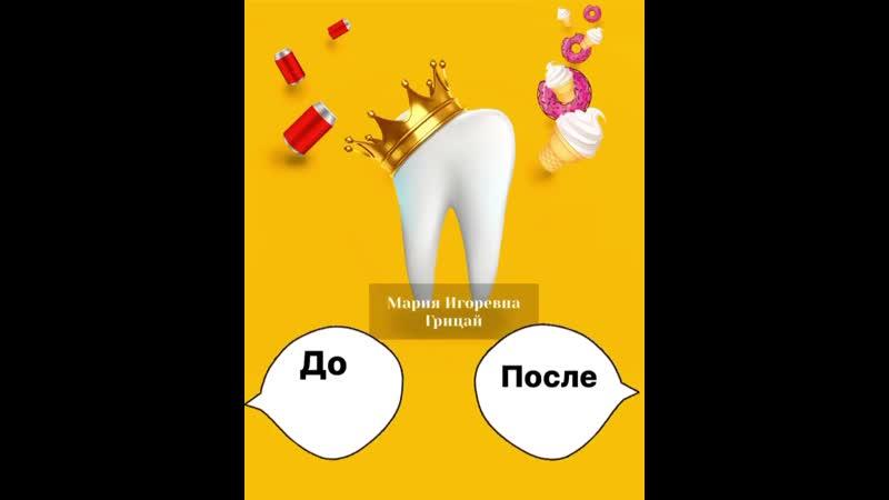 Пациент обратился в клинику на неприятные ощущения в 36 зубе ⠀На осмотре было выявлено что пломба на жевательной поверхности