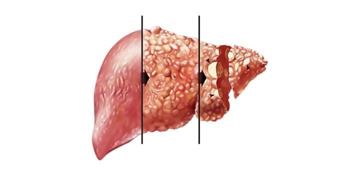 Цирроз печени - это коварный недуг